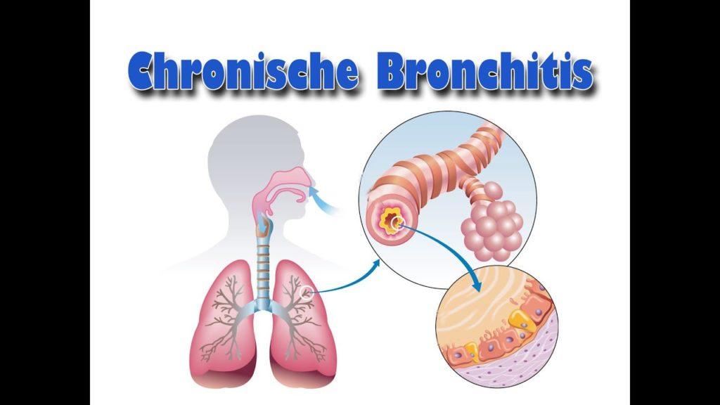 Die Grundlagen der chronischen Bronchitis verstehen