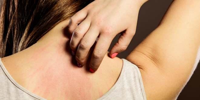 Tests auf Hautallergien